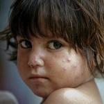 Mückenschutz für Kleinkinder und Babys
